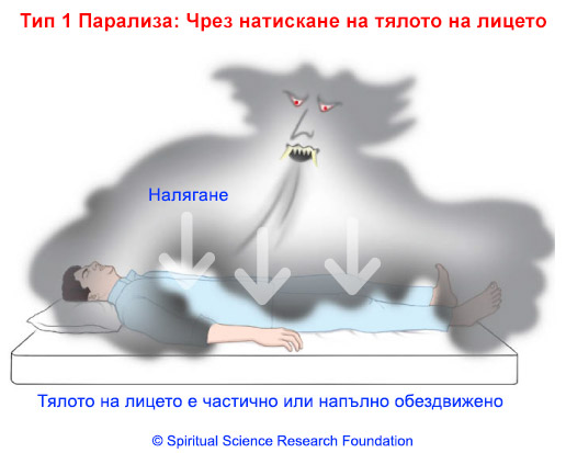2-BG_SleepParalysis_Type1