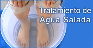 Tratamiento de Agua salada