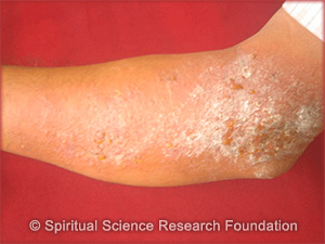 spiritual-cause-of-eczema-2