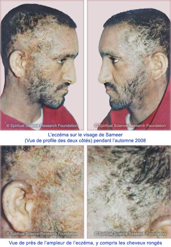9-FR-Severe-eczema