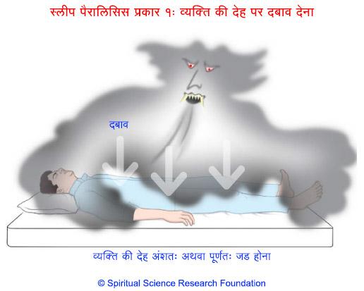 निद्रा पक्षाघात (स्लीप पैरालिसिस) प्रकार १ : व्यक्ति की देह पर दबाव देना