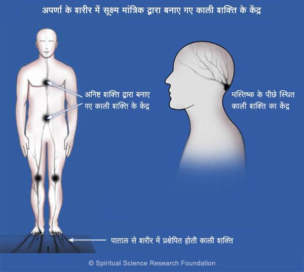 दीर्घकालीन अर्धशीर्षी (माईग्रेन) - आध्यात्मिक उपचार