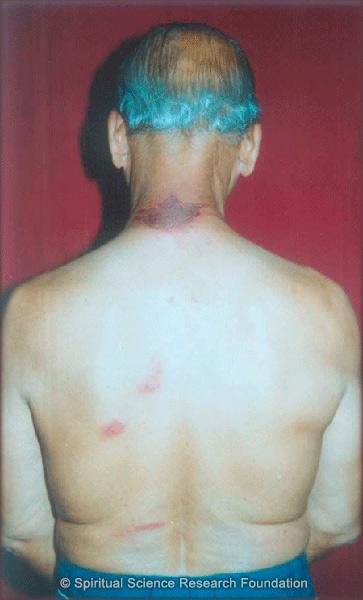 eczema-without-cause