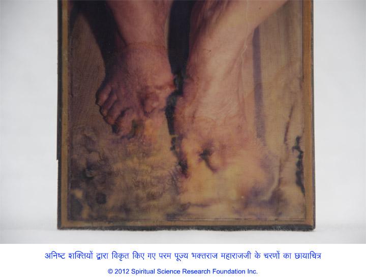 4-HIN-Baba-feet-disfiguration