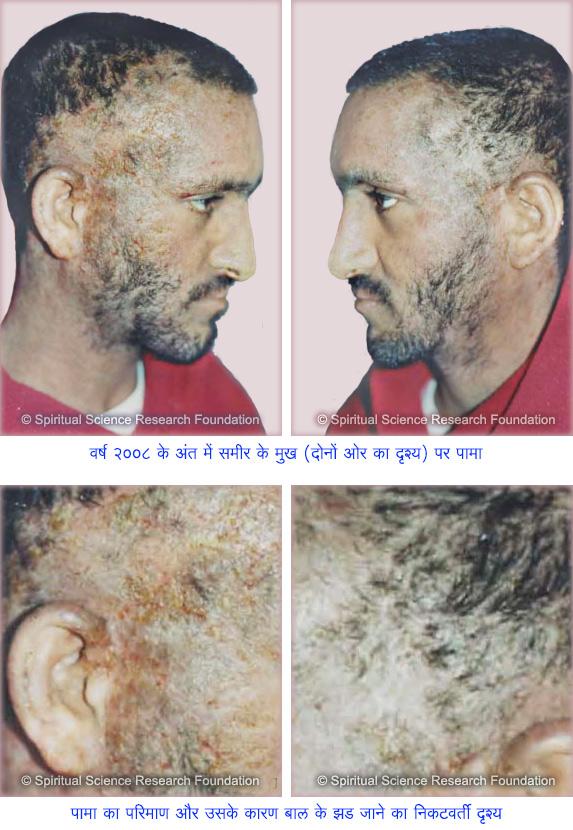 9-Severe-eczema