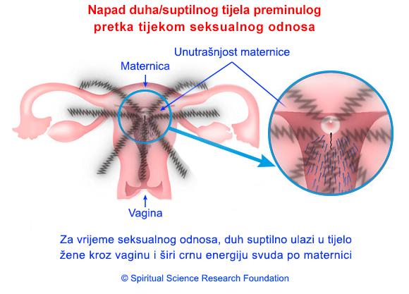 2-CRO-pregnancy
