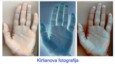 1-CRO_Kirilian-photography