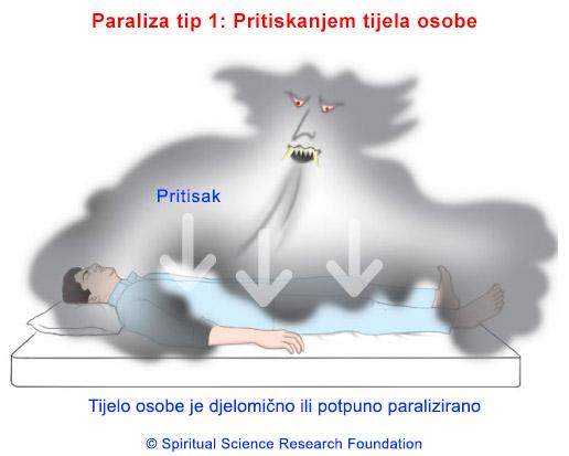 2-CRO-Sleep-Paralysis_Type1