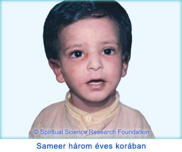 2-HUN-Severe-baby-eczema