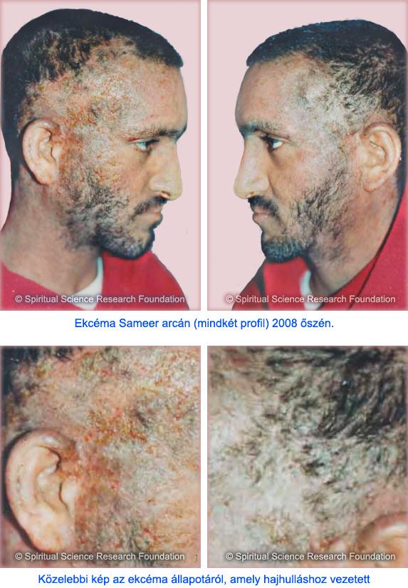 9-HUN_Severe-eczema