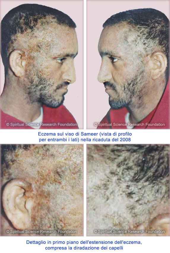 Trattamento dell'eczema con metodi di guarigione spirituale