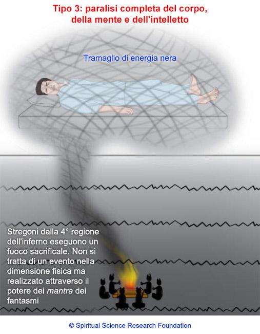 Paralisi del sonno - Cause e trattamenti