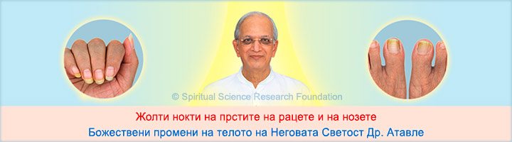 Божествени промени кои се манифестираат како жолти нокти