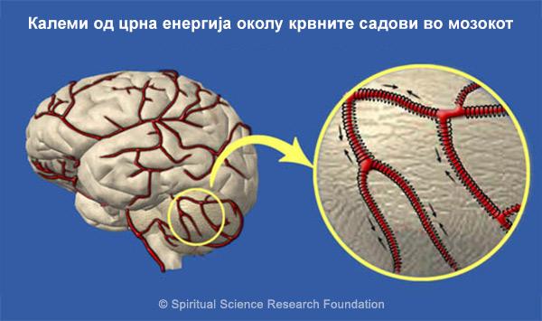 MKD_Brain