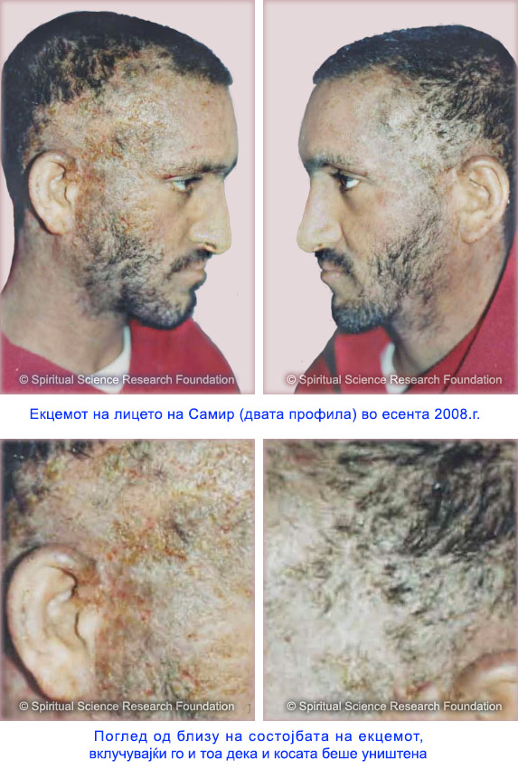 9-MKD-Severe-eczema