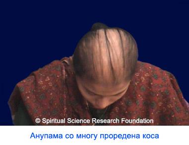 Спречено речиси целосно губење на косата со духовно исцелување и духовна пракса