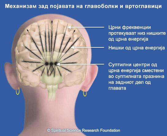 Надминување на тешки невролошки симптоми на церебрална аневризма