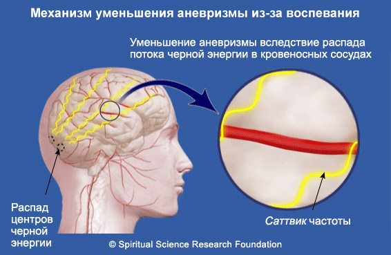 Преодоление церебральной аневризмы с тяжелыми симптомами, вызванными негативными энергиями - пример из практики