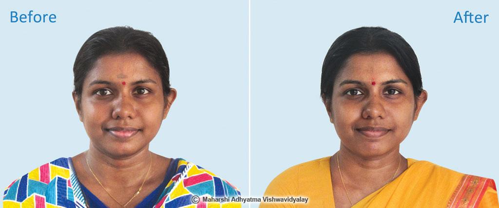 Miss Methuna Srikantharajah, Sri Lanka
