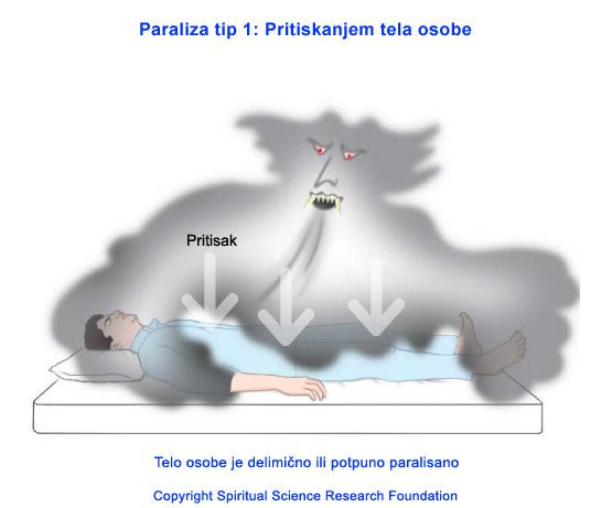 paraliza-u-snu-tip-1