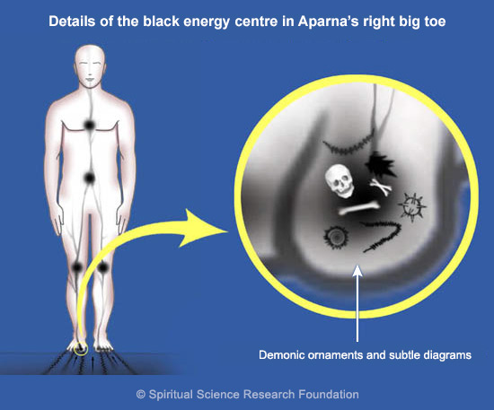 Chronic migraines from black energy black energy - detail