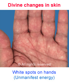 White spots due to Divine changes in the spiritually evolved
