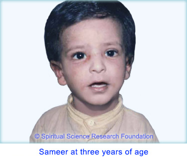 Eczema treatment by taking spiritual healing measures - Sameer at three years of age