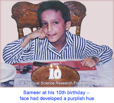 Before starting eczema treatment - Sameer at his 10th birthday - face had developed a purplish hue