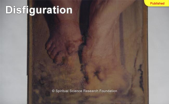 disfiguration