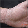 through chanting (japa) hand eczema cured
