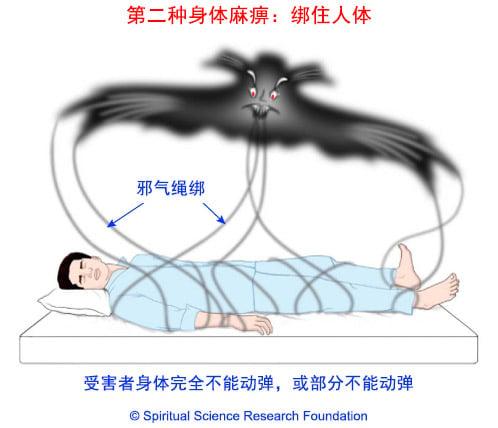 睡眠麻痹症因鬼绑住人体