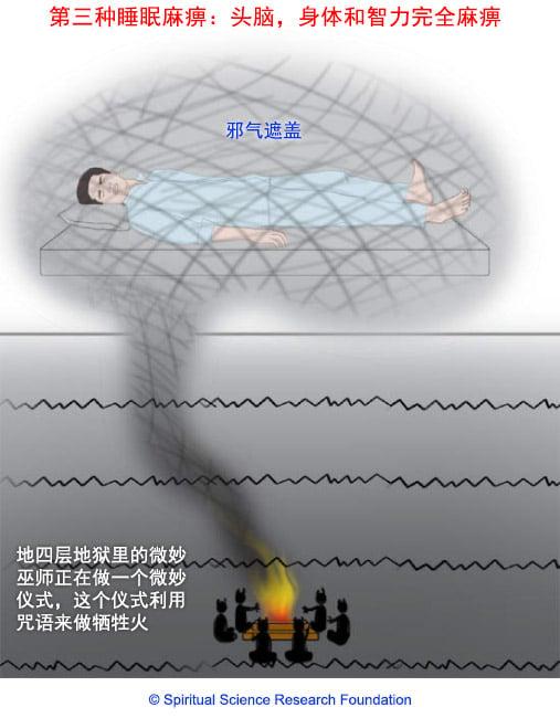睡眠麻痹症:巫师造成全身麻痹