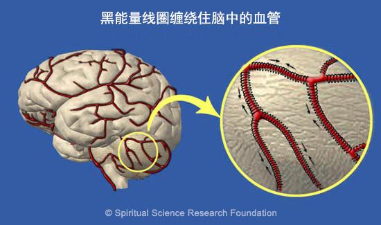 慢性偏头痛 - 灵性疗法